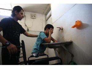 Esed rejiminin saldırısında bacaklarını kaybeden çocuk yardım bekliyor