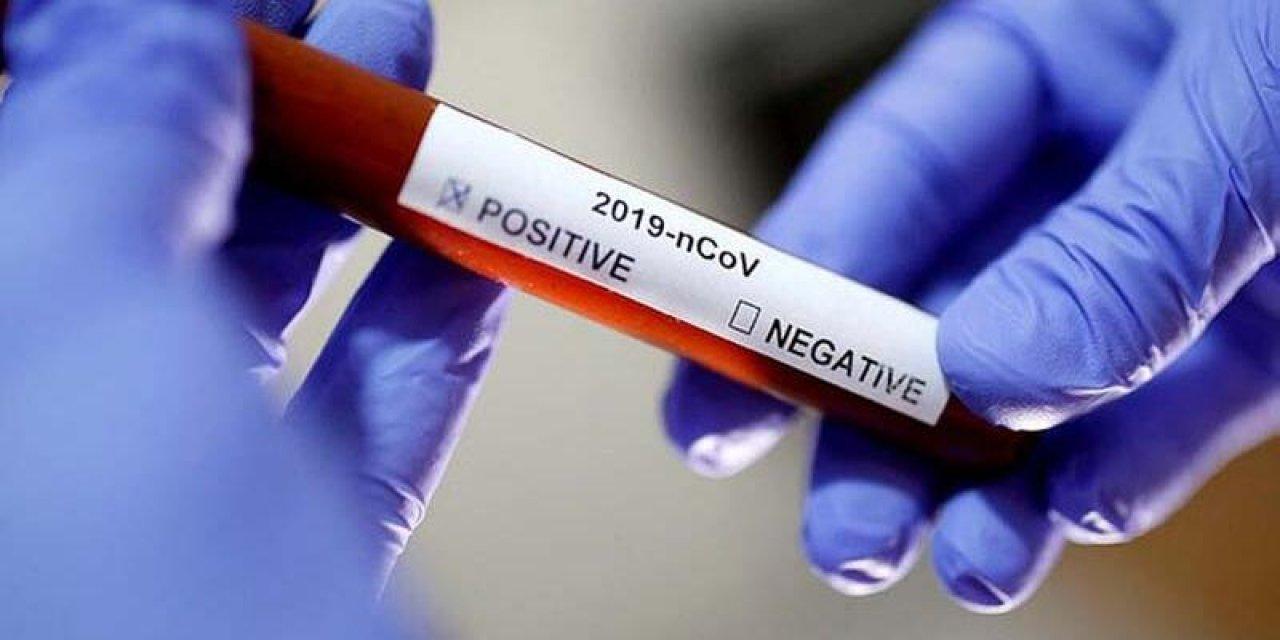 Türkiye'de koronavirüse karşı sert savaş devam ediyor