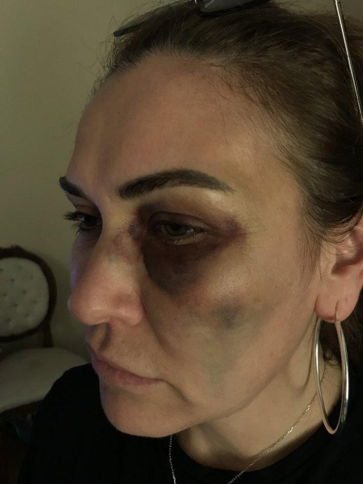 Beykoz'da komşular arasındaki kavganın yeni görüntüleri ortaya çıktı